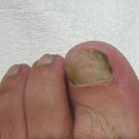服务好的韦一夫脚患修治哪里有-指甲往肉里长怎么办